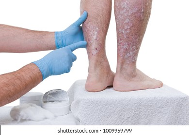 Psoriasis is a chronic inflammatory disease of the skin. Dermatologist visits the patient in the clinic, detail of the legs