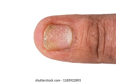 Psoriasis at the nail. Psoriasis is an autoimmune disease that affects the nail, close up of Psoriasis nail on white background.