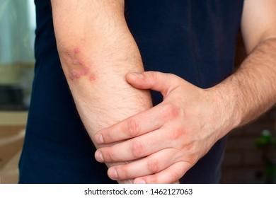 Psoriasis on the elbow. A man shows a focus of psoriasis on his body