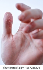 Psoriasis on the hands and fingers