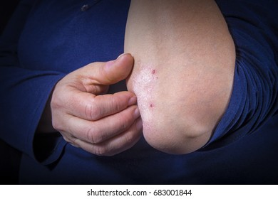 Psoriasis on lady's elbow on dark background. Close up