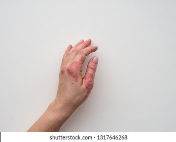Psoriasis skin. Closeup of rash and scaling on the patient's skin. The concept of chronic disease treatment. Dermatological problems. Hard, horny and cracked skin in woman's hand. Dry skin. Isolated