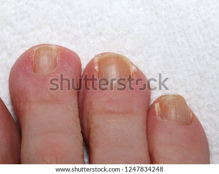 Psoriasis Toe Nails Close Photograph Toe Stock Photo (Edit Now ...