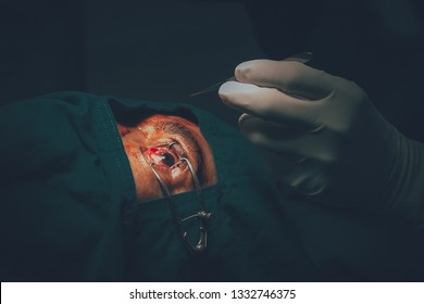 Pterygium surgery in the eye.