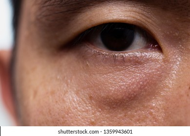 Ptosis (Droopy eyelid) in asian male oily skin type with dark eye bag