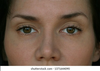 ptosis of the upper eyelid in a woman