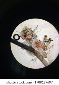 Pubic lice, also known as pubic lice, crab lice, crab fires, inguinal lice. These are pictures of them viewed through a microscope