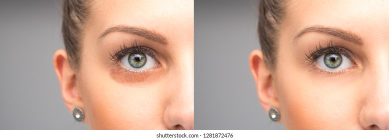 Puffiness under eyes removal before and after treatment