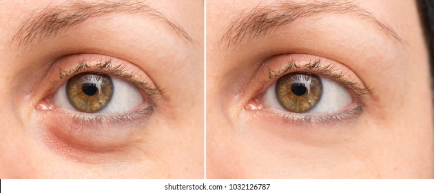 Puffy eye before and after beauty treatment