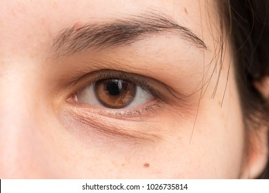 Puffy eye of girl showing eyes bags
