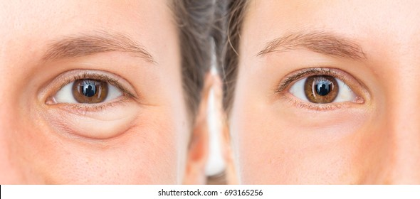 Puffy eye of woman before and after removal treatment