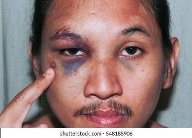 Puffy swollen eye on a Asian man - brow crack