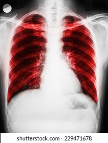 Pulmonary Disease On Patient Lungs X-Ray