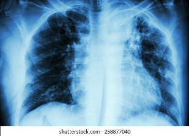 Pulmonary Tuberculosis .  Chest X-ray : interstitial infiltration at left upper lung due to Mycobacterium Tuberculosis infection