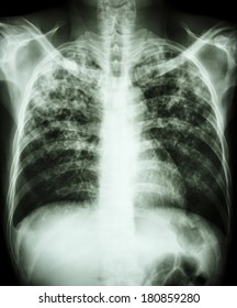"""Pulmonary tuberculosis""  Film chest x-ray show interstitial infiltration both lung due to mycobacterium tuberculosis infection"