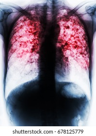 Pulmonary Tuberculosis . Film chest x-ray show fibrosis , interstitial infiltration both lung due to Mycobacterium tuberculosis infection .