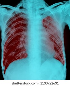 Pulmonary tuberculosis . Film x-ray of chest show patchy infiltrate at lung