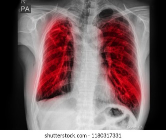 Pulmonary Tuberculosis ( TB ) : Chest x-ray show alveolar infiltration at both lung due to mycobacterium tuberculosis infection.