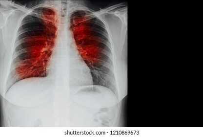 Pulmonary Tuberculosis ( TB ) : Chest x-ray show alveolar infiltration at both lung due to mycobacterium tuberculosis infection and blank area at left side