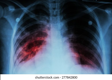 Pulmonary Tuberculosis ( TB )  :  Chest x-ray show alveolar infiltration at both lung due to mycobacterium tuberculosis infection