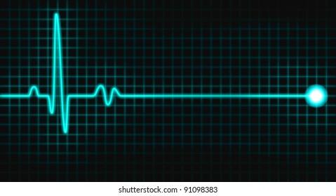 pulse graph on black grid