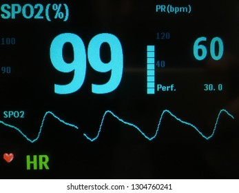 Pulse Oximeter and heart rate on screen monitor.