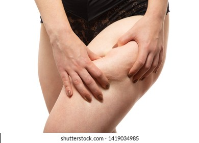 punch oversized female buttocks with cellulite on white background