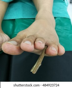Puncture Wound Penetrate By Wood To Foot Accident