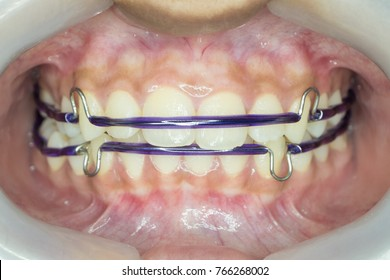 purple retainer in place
