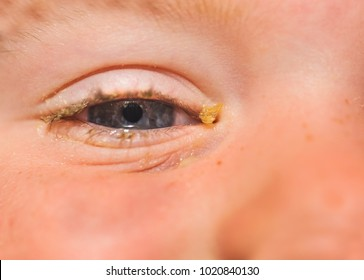 purulent conjunctivitis in children eyes