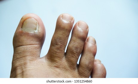 Pus caused by ingrown nails