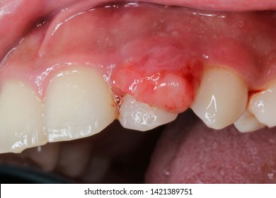 The pyogenic granuloma is a relatively common, tumorlike, exuberant tissue response to localized irritation or trauma. Pyogenic granuloma of the oral cavity is known to involve the gingiva commonly.