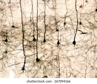 Pyramidal neurons of the cerebral cortex impregnated with the Golgi method.