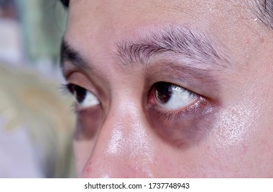 Raccon eyes or periorbital ecchymosis or panda eye sign in Southeast Asian young male patient. It is a sign of basal skull fracture or subgaleal hematoma. Lateral view.