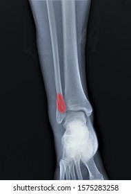 radiograph of the ankle joint with a fracture of the outer ankle without displacement, traumatology, medical diagnostics
