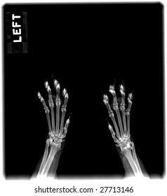 Radiograph of the paws of a cat