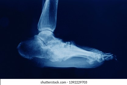 A radiograph or x-ray of foot and ankle showing severe foot deformity called rocker bottom foot.