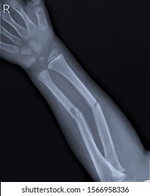 radiography of the forearm with a fracture of the radius and ulna, Traumatology and orthopedics, traumatology