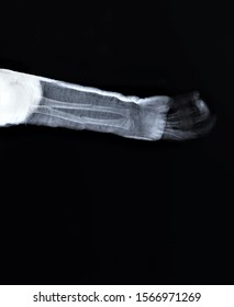radiography of the forearm with a fracture of the radius and ulna with immobilization with a plaster spar, Traumatology and orthopedics,