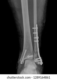 radiography fracture ankle and foot