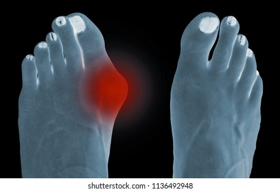 Radiography simulation of hallux valgus, bunion in female foot
