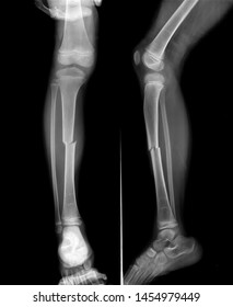 Radiography of Tibial fracture at mid shaft of the bone in young boy patient.