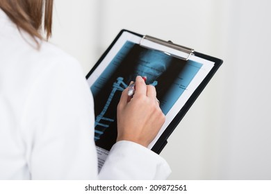 Radiologist or doctor looking at an x-ray attached to a clipboard as she makes notes, closeup of her hands