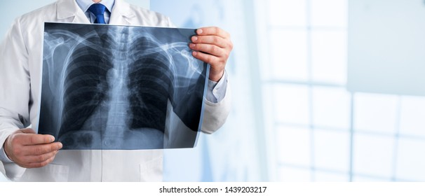 Radiology doctor examining at chest x-ray film of a patient at the hospital room