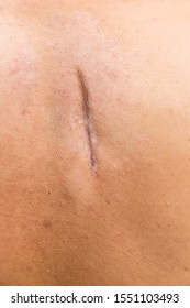 Raised scar. scar after appendectomy. cyanotic keloid scar caused by surgery and suturing, skin imperfections or defects. Hypertrophic Scar on skin