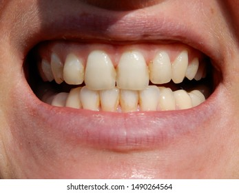 a range of white teeths in an open mouth of a young man or woman