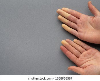Raynaud's disease (syndrome). Hands of a young woman suffering from raynaud's phenomenon. Female fingers turning white and red due to cold or stress. Rheumatology Copy space. Top view. Grey background
