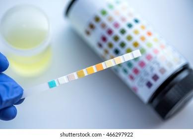 Reagent Strip for Urinalysis , Routine Urinalysis, check-up analysis in laboratory.