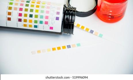 Reagent Strip for Urinalysis , Routine Urinalysis, urine test check-up analysis in laboratory.