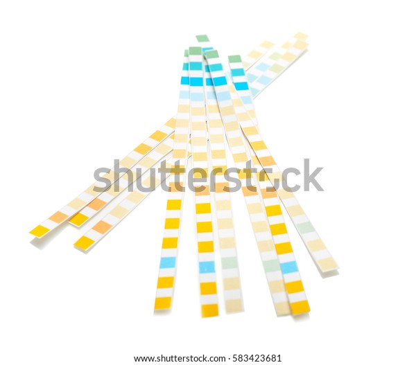 Reagent test strips for urinalysis isolated on white